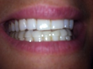 fitted mouthguard for teeth grinding